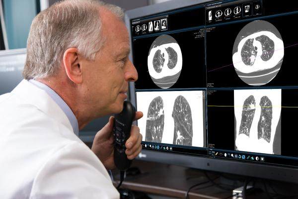 Changes outlined in new draft U.S. Preventive Services Task Force (USPSTF)lung cancer screening recommendationswill greatly increase the number of Americans eligible for screening and help medical providers save thousands more lives each year.