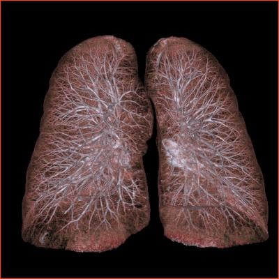Mayo Clinic study, low-dose CT screening, lung cancer, heavy smokers