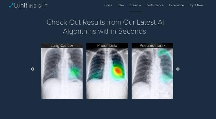 Lunit Insight Offers Cloud-Based AI Analysis for Chest X-rays