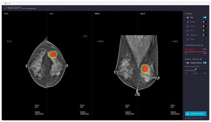 Lunit Unveiling AI-Based Mammography Solution at RSNA 2018