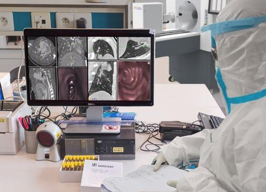 In the light of the coronavirus outbreak, MILabs has enhanced its line of high-performance CT scanners to even better detect the disease #COVID19 #Coronavirus #2019nCoV #Wuhanvirus #SARScov2