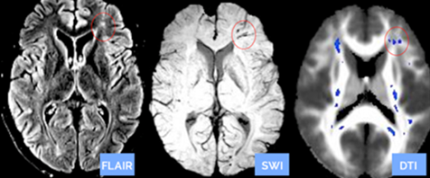 MRI systems, Clinical Trial/Study, Diffusion Tensor Imaging