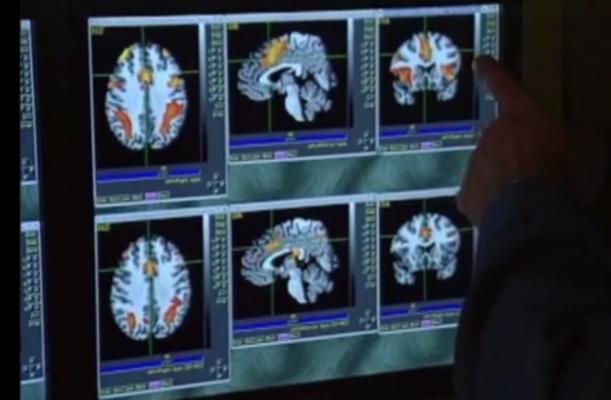 MRI, diffusion tensor imaging, Shannon entropy, concussion patients, migraines