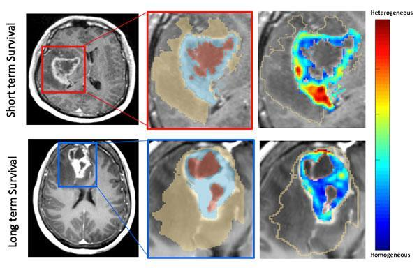 An example of the MRI scans showing long-term and short-term survival indications. #MRI
