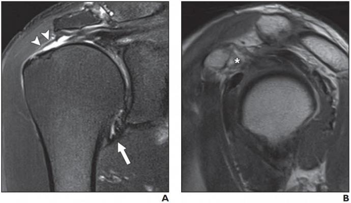 Two magnetic resonance imaging (MRI) findings — joint capsule edema and thickness at the axillary recess, specifically — proved useful in predicting stiff shoulder in patients with rotator cuff tears, according to an ahead-of-print article in the May issue of theAmerican Journal of Roentgenology (AJR)