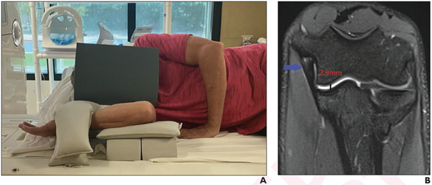 According to a pilot study published in ARRS' American Journal of Roentgenology (AJR), the flexed elbow valgus external rotation (FEVER) view can improve magnetic resonance imaging (MRI) evaluation of the ulnar collateral ligament (UCL) in Major League Baseball (#MLB) pitchers.