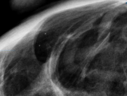 FDA Proposes New Rules for Mammography Reporting and Quality Improvement
