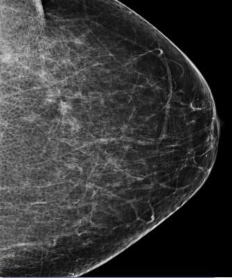 FDA, Richard D. Adelman M.D. Family Medicine, mammogram quality, problems