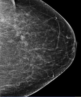 breast cancer screening, death risk, 40 percent, Queen Mary University of London
