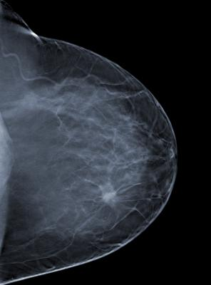 Breast Cancers Found By Mammography Do Not Regress If Left