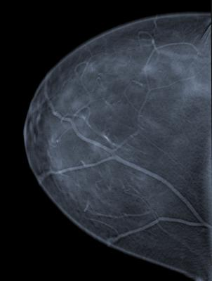 breast cancer screening, digital mammography, false positives, younger women, clinicl study, Annals of Internal Medicine