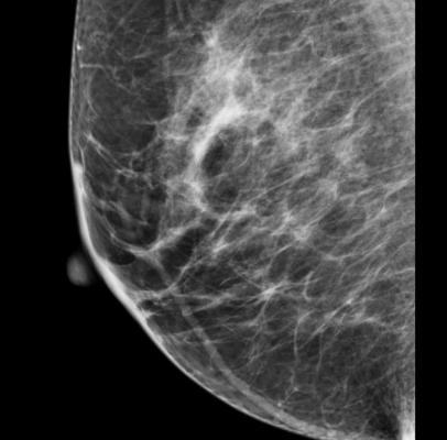 Mammography NHS Breast Screening Programme London United Kingdom