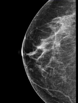 Mammography systems, women's health, RSNA 2014, breast density
