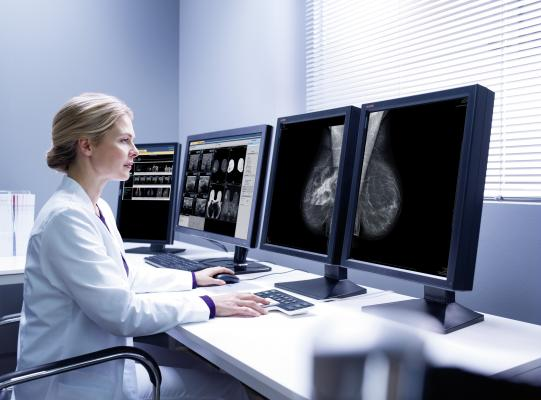 USPSTF, breast cancer screening recommendations, ACR, SBI