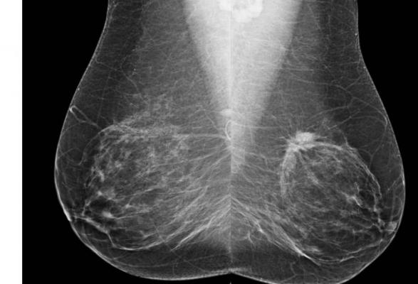 Researcher Improves Near Term Breast Cancer Detection With Image