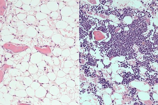 Drug Accelerates Blood System's Recovery After Radiation, Chemotherapy