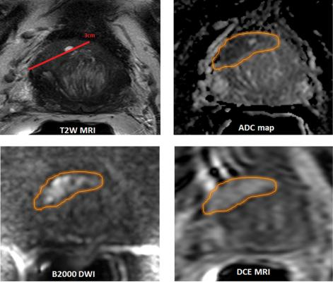 Artificial Intelligence Performs As Well As Experienced Radiologists in Detecting Prostate Cancer