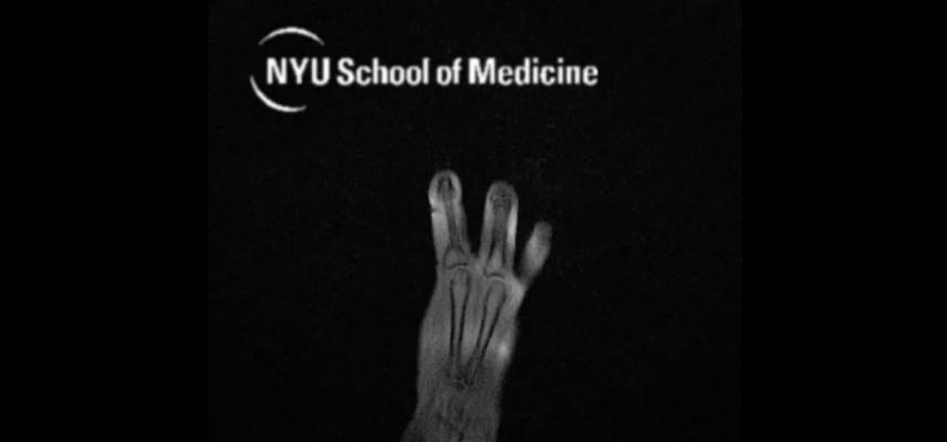 "MRI ""Glove"" Provides New Look at Hand Anatomy"