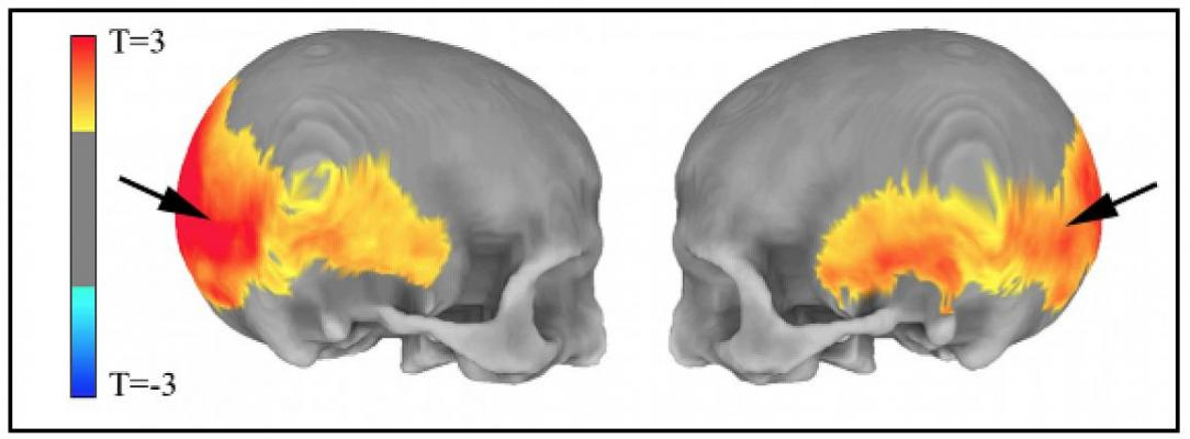 """""""Residual Echo"""" of Ancient Humans May Hold Clues to Mental Disorders"""