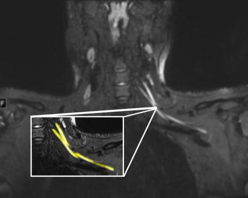 An MR image of a patient in their early 20s shows nerve injury (highlighted in yellow) of the left brachial plexus in the neck. The patient experienced left arm weakness and pain after recovering from COVID-19 respiratory illness, which prompted them to see their primary care physician. As a result of the MRI findings, the patient was referred to the COVID-19 neurology clinic for treatment. Image courtesy ofNorthwestern University