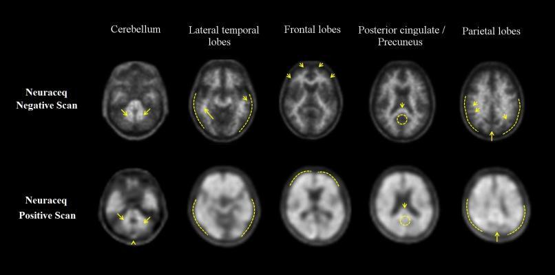 Neuraceq, florbetaben, F18, F-18, Piramal, alzheimer's