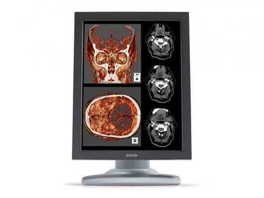 Barco Incorporates NeoLogica RemotEye Suite for Diagnostic Display Demos in North America