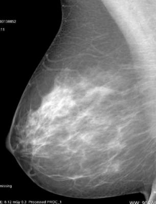 Norwegian Study Confirms Higher Cancer Rate in Women with Dense Breast Tissue