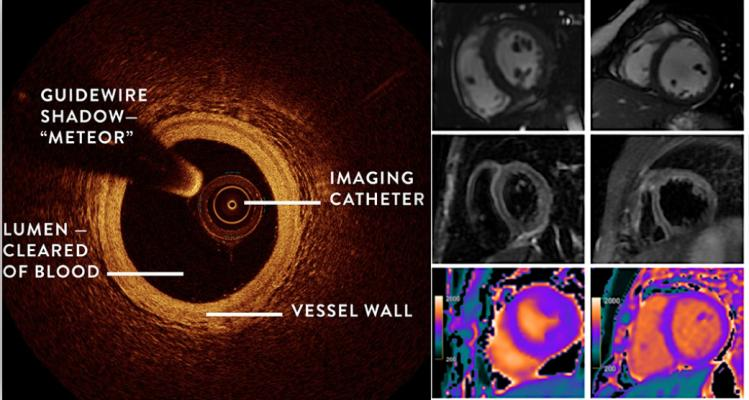 The Women's Heart Attack Research Program (HARP) study shows combining OCT and cardiac MRI can help detect the underlying cause of heart attacks in women who did not have blocked arteries.