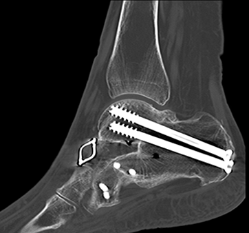 ultra-low-dose CT scans, orthopedic fractures, NYU Langone Medical Center study