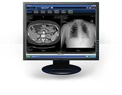 April 13, 2020—Hyland Healthcarehas launched PACSgear Enterprise – the latest version of the PACSgear server software, which supports the advanced capture and connectivity modules of thePACSgear platform.