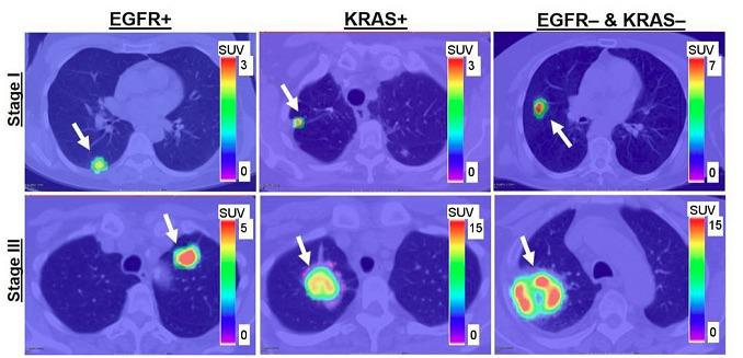 FDG-PET, cell mutations, lung cancer patients, non-small cell lung cancer, NSCLC, Journal of Nuclear Medicine study