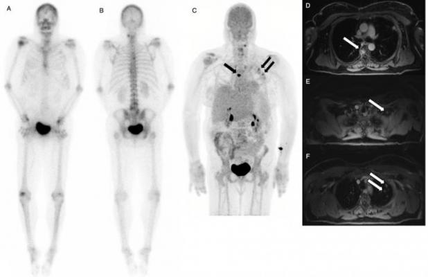 Dual-Agent PET/MR With Time of Flight Detects More Cancer