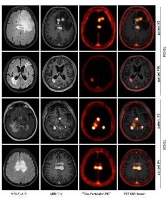 CXCR4-directed PET correlates with MRI-determined lymphoma lesions. Depicted are representative MR images (T1c- and FLAIR- sequences), and the corresponding CXCR4- directed PET images and fusion images (MRI-FLAIR and PET), of two patients with PCNSL and SCNSL, respectively. Images created by Department of Nuclear Medicine, School of Medicine, Technische Universität München, Munich, Germany.