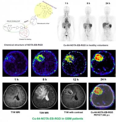 Representative maximum-intensity projection PET images of a healthy human volunteer injected with 64Cu-NOTA-EB-RGD at 1, 8, and 24 hours after injection. Axial MRI and PET slices of glioblastoma patient injected with 64Cu-NOTA-EB-RGD at different time points after injection. Image courtesy ofJingjing Zhang et al., Peking Union Medical College Hospital, Beijing, China/ Xiaoyuan Chen et al., Laboratory of Molecular Imaging and Nanomedicine, NIBIB/NIH, Bethesda, USA