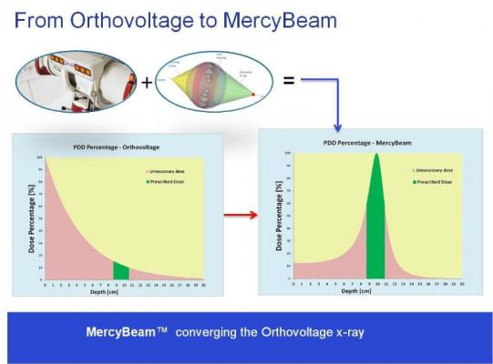 Convergent R.N.R Mercy Beam Technology Radiation Therapy