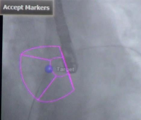 ASE Releases Guidelines for Transesophageal Echo in Congenital Heart Disease