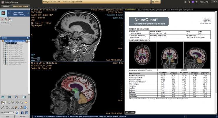 Delaware Imaging Network Now Offers NeuroQuant Brain Imaging MRI Software