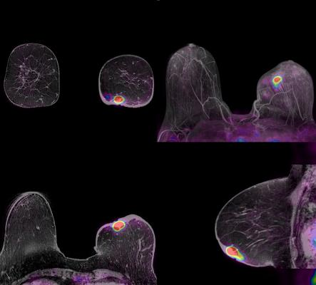 PET Tracer Identifies Estrogen Receptor Expression Differences in Breast Cancer Patients