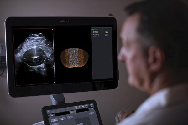 The Philips AAA Model integrates software and Philips 3-D ultrasound technologies into a single solution to automatically segment and quantify the size of the aneurysm sac for surveillance of known native and post-EVAR treated AAAs.