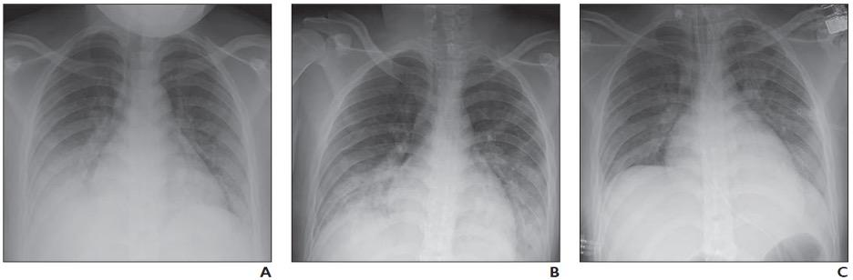 16-year-old girl with coronavirus disease (COVID-19) and known history of tuberous sclerosis who presented with acute hypoxic respiratory distress. Reverse transcription–polymerase chain reaction testing confirmed diagnosis of severe acute respiratory syndrome coronavirus 2 (SARS-CoV-2).