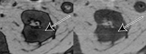Axial T1-weighted gradient echo opposed-phase and in-phase images.