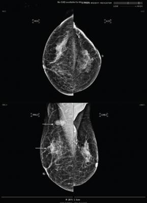 artificial intelligence-based computer-aided detection (AI-CAD) can be a practical addition for lowering false-positive findings when performing post-breast conserving therapy (BCT) surveillance mammography