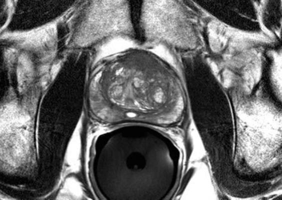 prostate cancer, PI-RADS, best clinical research paper, European Urology
