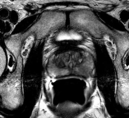Prostate cancer MRI