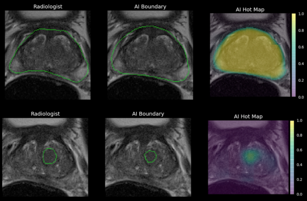 Ezra, a NY-based startup transforming early cancer screening using magnetic resonance imaging (MRI), announced that it hasreceived FDA 510(k) premarket authorization for its Artificial Intelligence, designed to decrease the cost of MRI-based cancer screening, assisting radiologists in their analysis of prostate MRI scans. It is the first prostate AI to be cleared by the FDA.