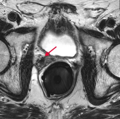prostate cancer, increased radiation dose, survival, Sidney Kimmel Cancer Center study