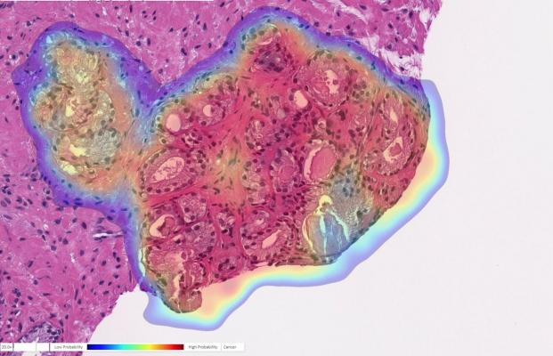 Prostate biopsy with cancer probability (blue is low, red is high). This case was originally diagnosed as benign but changed to cancer upon further review. The AI accurately detected cancer in this tricky case. Image courtesy of Ibex Medical Analytics