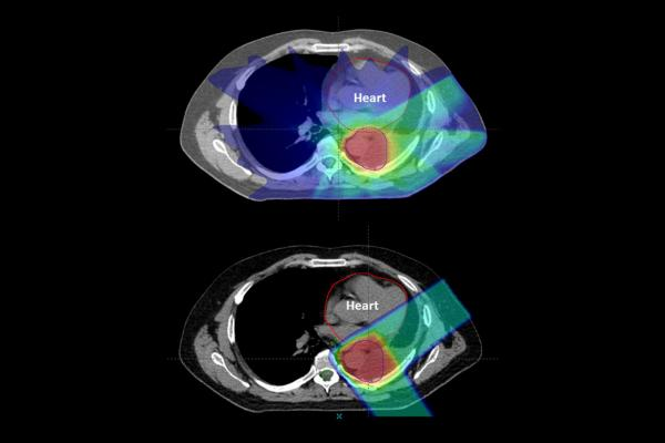 Treating lung cancer patients with proton therapy may help reduce the risk of radiation-induced heart diseases, suggests a new study fromPenn Medicine. In a retrospective trial of more than 200 patients, mini-strokes were significantly less common among patients who underwent proton therapy versus conventional photon-based radiation therapy. Proton therapy patients also experienced fewer heart attacks.