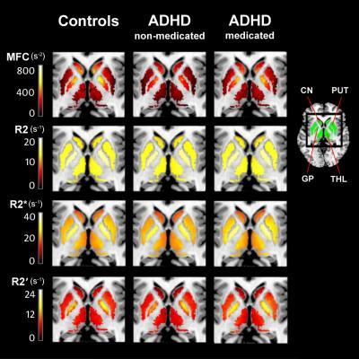 imaging MRI systems rsna 2013 adhd