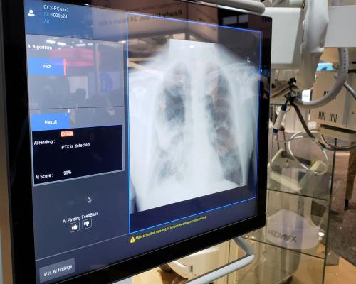 SIIM and ACR Host Machine Learning Challenge for Pneumothorax Detection and Localization